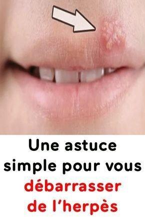 astuce pour herpès 2899528783402700458..jpg